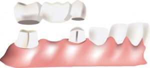 dental bridge services in Hendersonville, NC